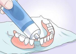 Клеим зубной протез